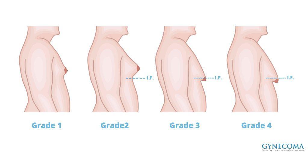 types-or-grades-of-gynecomastia